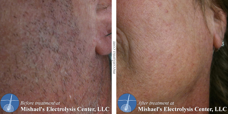 Before & After Electrolysis Hair Removal   Mishael's