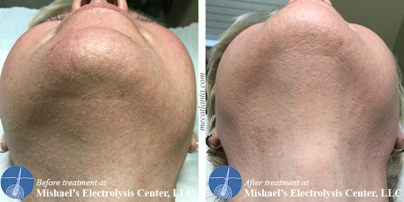 Before & After Electrolysis Hair Removal | Mishael's