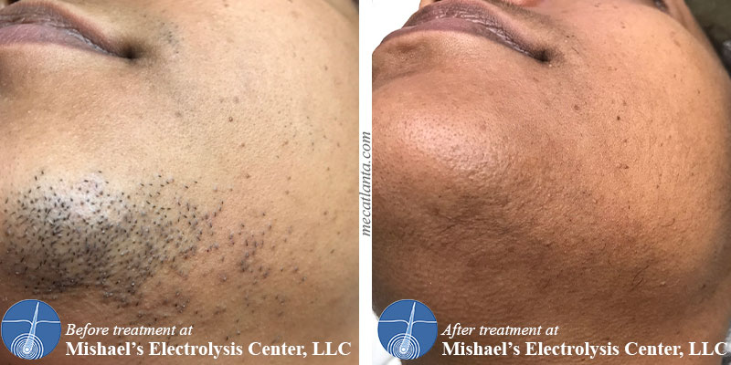 Before After Electrolysis Hair Removal Mishael S Electrolysis Center